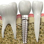Dental Implants, Austin Heights Dental Centre, Coquitlam Dentist