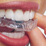Invisalign, Austin Heights Dental Centre, Coquitlam Dentist