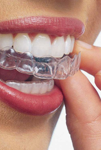 Invisalign, Austin Heights Dental
